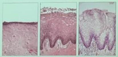 Ginecólogo-A-Coruña-Laser-vaginal